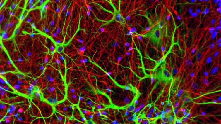 داروشناسی عصبی و داروهای ضد روان پریشی